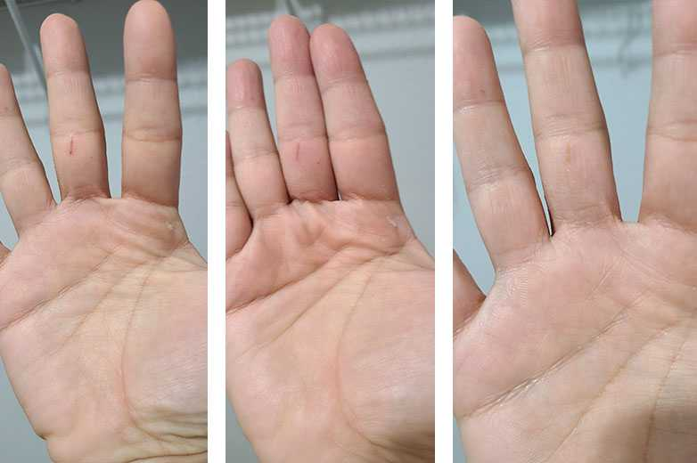 Dry skin and painful cuts? Not on my hands. I used JustATP a few times a day and my skin got back to normal in no time.