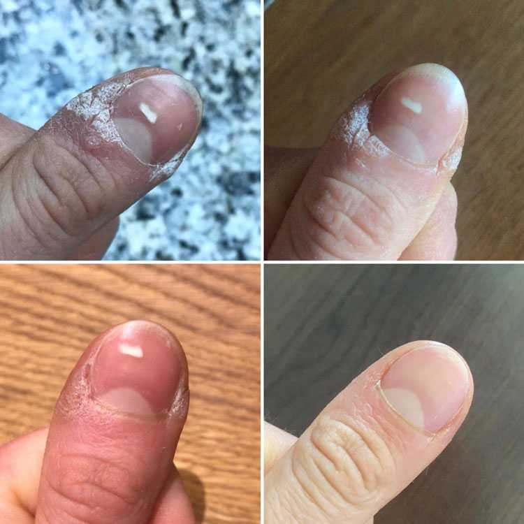 I can't believe that my painful wart is completely gone and all it took was daily spraying. Easy and effective!